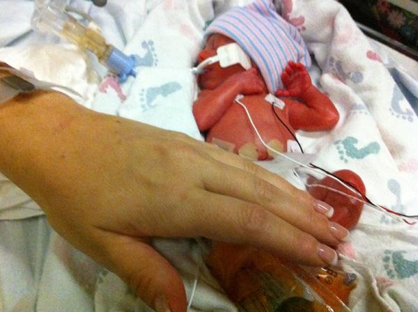 1 - Sam at Birth - 1 lb 12 oz