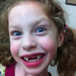 Sam the Anti-Preemie's sister loose three teeth