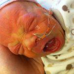 Sam the Anti-Preemie: Soundless scream in NICU | 11/19/2010