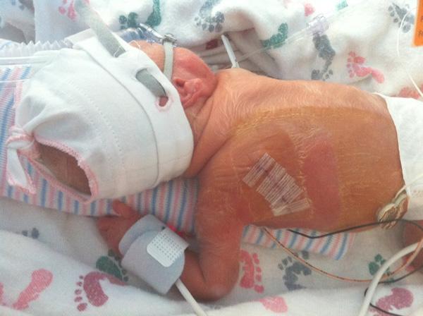 Sam The Anti-Preemie: Then